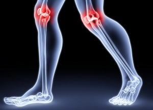 causes of knee arthrosis
